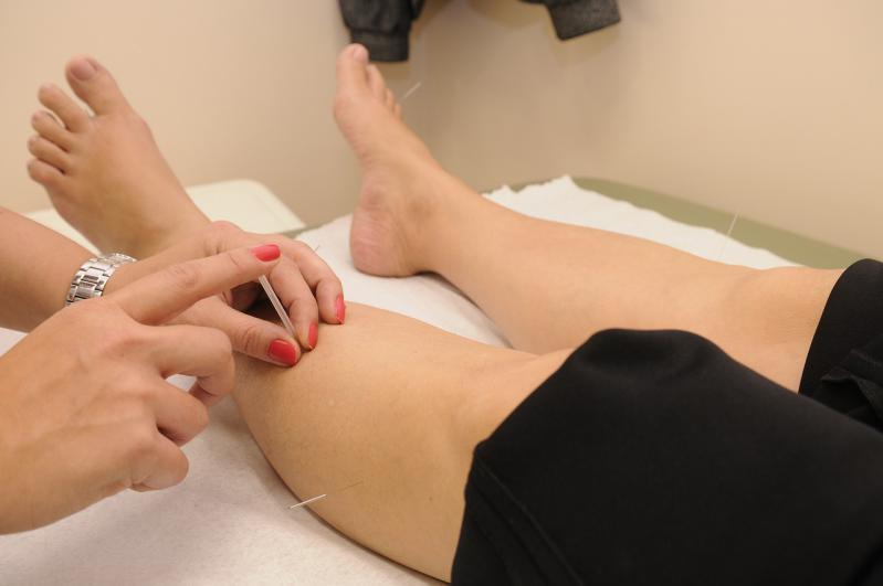 acupuntura - dr mario recalde- medicina alternativa